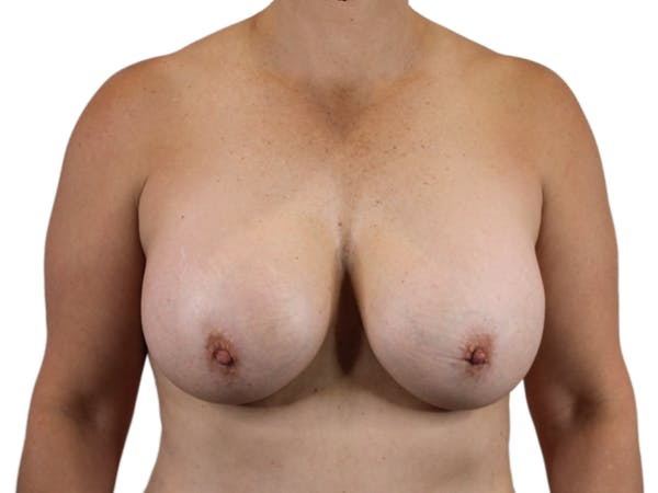 Breast Augmentation Gallery - Patient 53827809 - Image 2