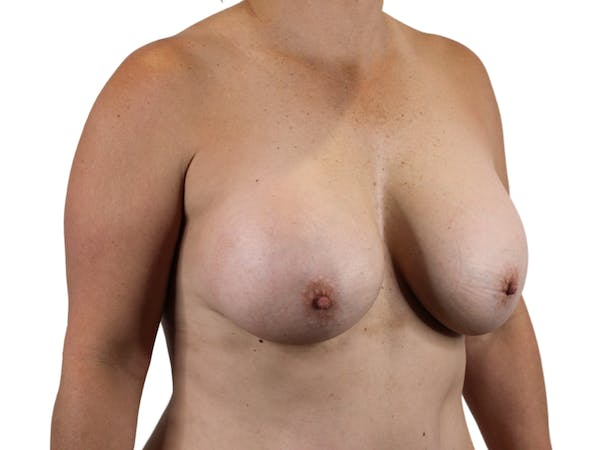 Breast Augmentation Gallery - Patient 53827809 - Image 4