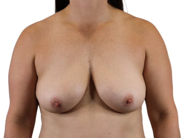 Breast Augmentation Gallery - Patient 53827809 - Image 1