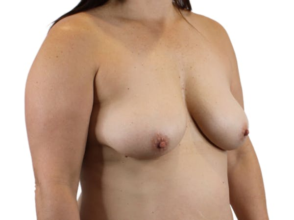 Breast Augmentation Gallery - Patient 53827809 - Image 3