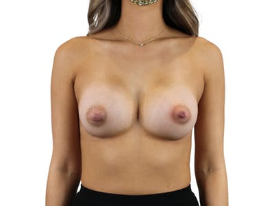Breast Augmentation Gallery - Patient 53827843 - Image 2