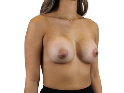 Breast Augmentation Gallery - Patient 53827843 - Image 4