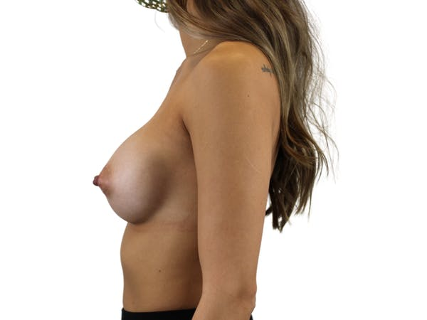 Breast Augmentation Gallery - Patient 53827843 - Image 6