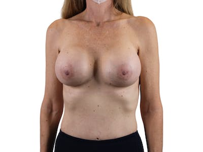 Breast Augmentation Gallery - Patient 53827870 - Image 2