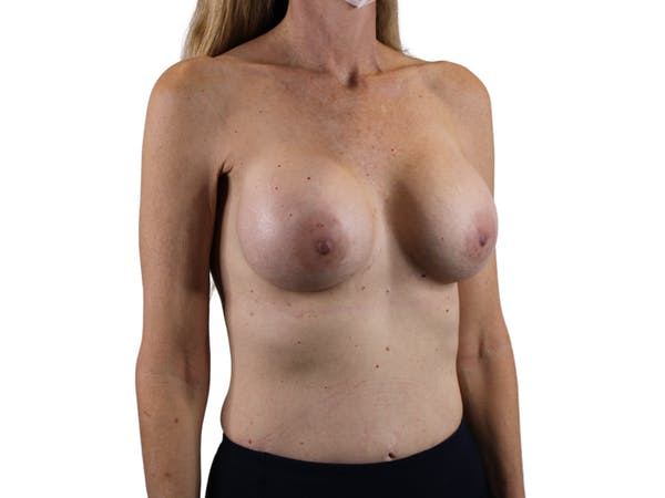 Breast Augmentation Gallery - Patient 53827870 - Image 4