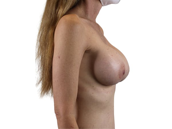 Breast Augmentation Gallery - Patient 53827870 - Image 6