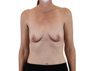 Breast Augmentation Gallery - Patient 53827870 - Image 1