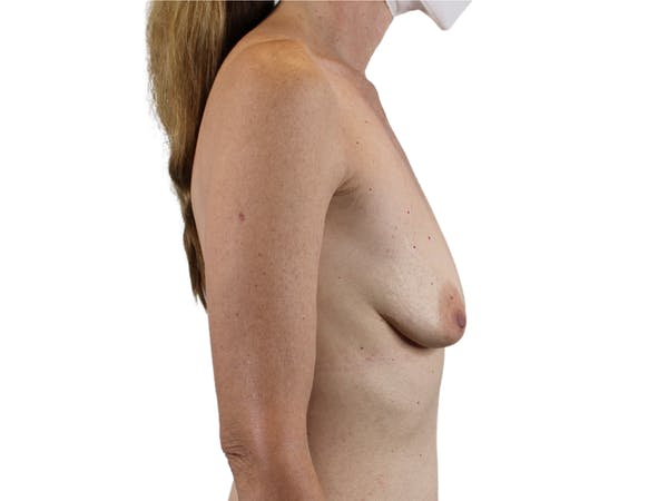 Breast Augmentation Gallery - Patient 53827870 - Image 5