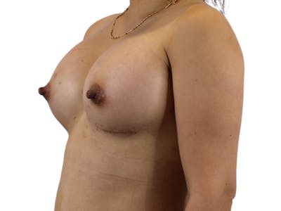 Breast Augmentation Gallery - Patient 53827885 - Image 4