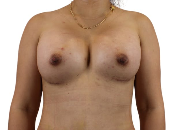 Breast Augmentation Gallery - Patient 53827885 - Image 2