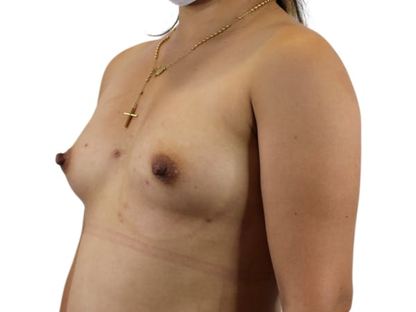 Breast Augmentation Gallery - Patient 53827885 - Image 3