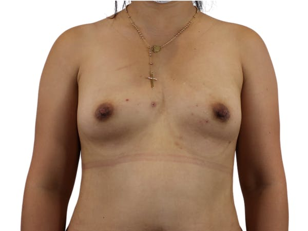 Breast Augmentation Gallery - Patient 53827885 - Image 1