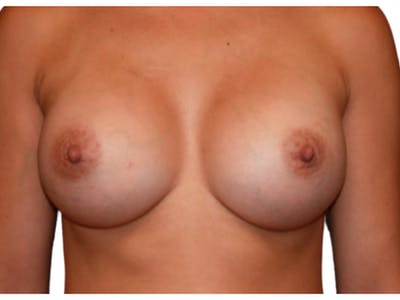 Breast Augmentation Gallery - Patient 53827910 - Image 2
