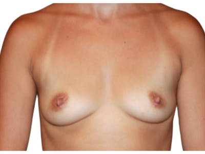 Breast Augmentation Gallery - Patient 53827910 - Image 1