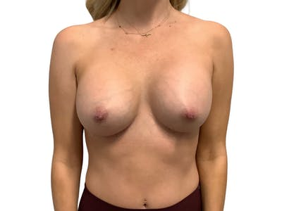 Breast Augmentation Gallery - Patient 53828160 - Image 2