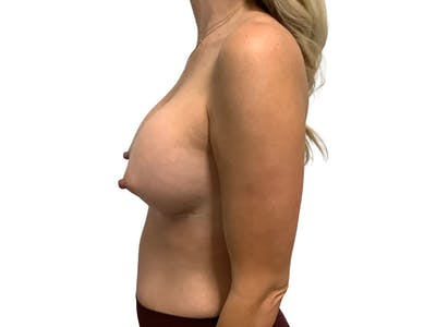 Breast Augmentation Gallery - Patient 53828160 - Image 6