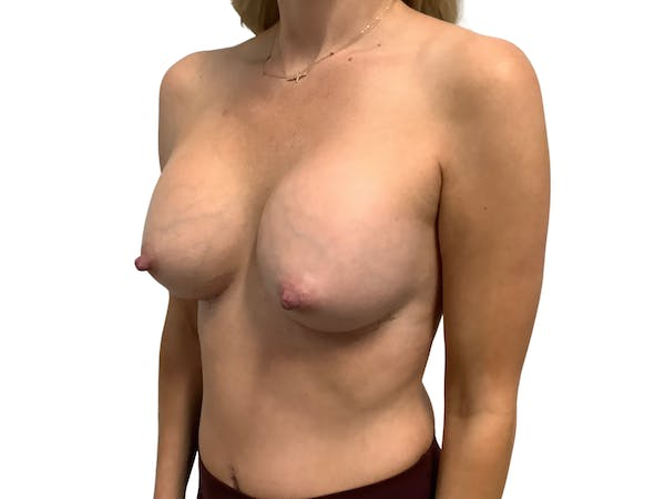 Breast Augmentation Gallery - Patient 53828160 - Image 4