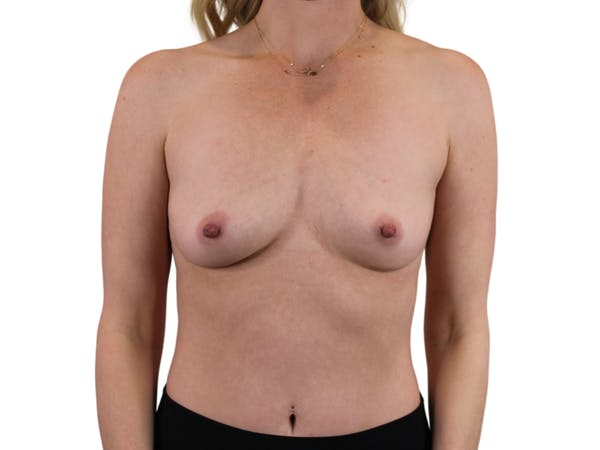 Breast Augmentation Gallery - Patient 53828160 - Image 1