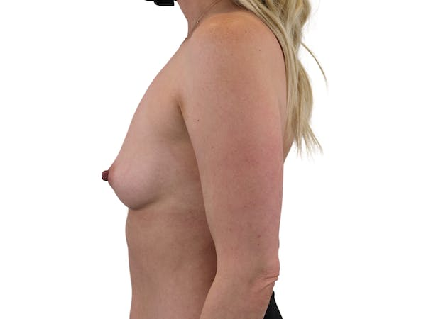 Breast Augmentation Gallery - Patient 53828160 - Image 5