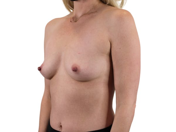 Breast Augmentation Gallery - Patient 53828160 - Image 3