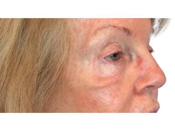 Blepharoplasty Gallery - Patient 53828330 - Image 3
