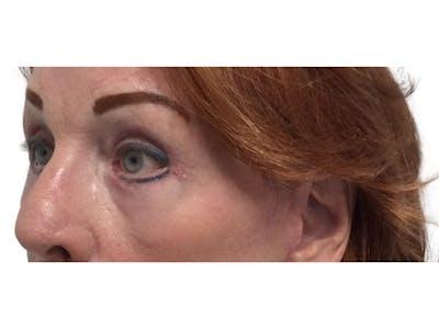 Blepharoplasty Gallery - Patient 53828393 - Image 4