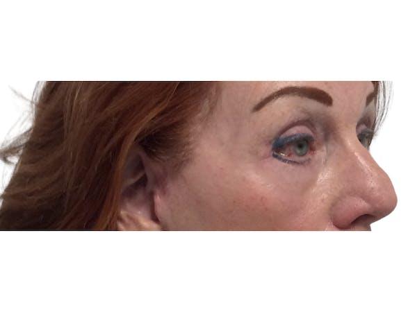 Blepharoplasty Gallery - Patient 53828393 - Image 6