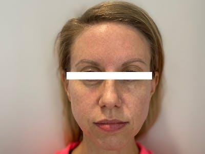 Cheek Filler  Gallery - Patient 53828952 - Image 2