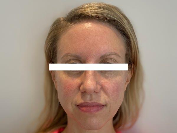 Cheek Filler  Gallery - Patient 53828952 - Image 1
