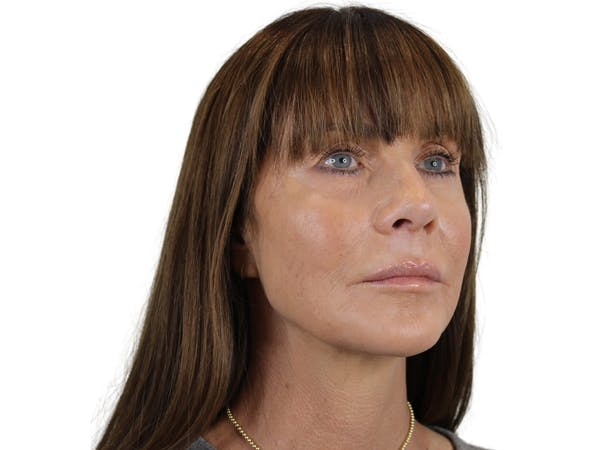 Chin Filler Gallery - Patient 53829881 - Image 2