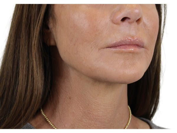 Chin Filler Gallery - Patient 53829881 - Image 4