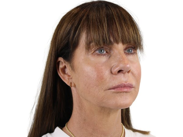 Chin Filler Gallery - Patient 53829881 - Image 1