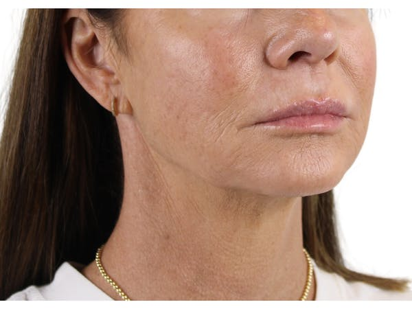 Chin Filler Gallery - Patient 53829881 - Image 3