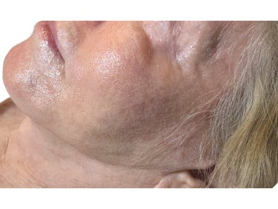 Jawline Filler  Gallery - Patient 53829934 - Image 1