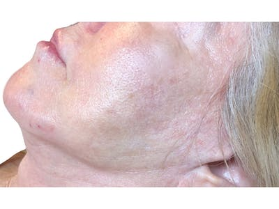 Jawline Filler  Gallery - Patient 53829934 - Image 2