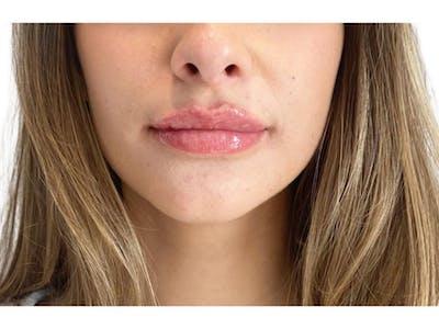 Lip Filler Gallery - Patient 53830075 - Image 2