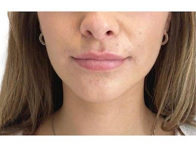 Lip Filler Gallery - Patient 53830075 - Image 1