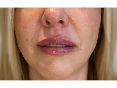 Lip Filler Gallery - Patient 53830076 - Image 2