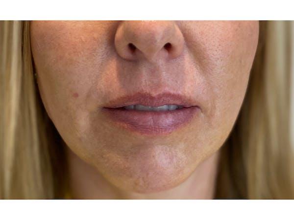 Lip Filler Gallery - Patient 53830076 - Image 1