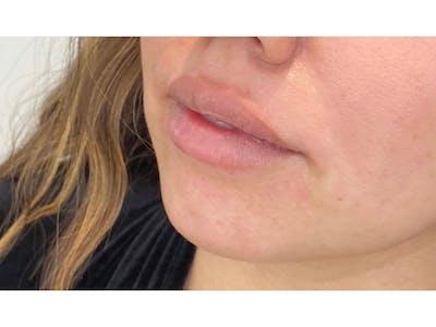 Lip Filler Gallery - Patient 53830077 - Image 1