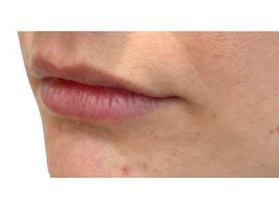 Lip Filler Gallery - Patient 53830078 - Image 1