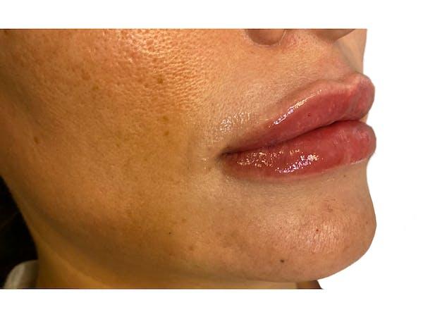 Lip Filler Gallery - Patient 53830079 - Image 4