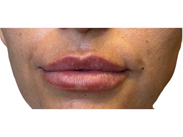Lip Filler Gallery - Patient 53830079 - Image 1