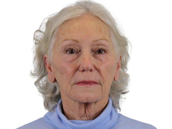Facelift Gallery - Patient 57989300 - Image 1