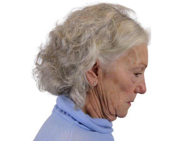 Facelift Gallery - Patient 57989300 - Image 7