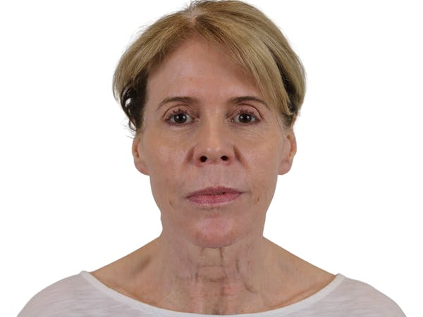 Facelift Gallery - Patient 50517878 - Image 1
