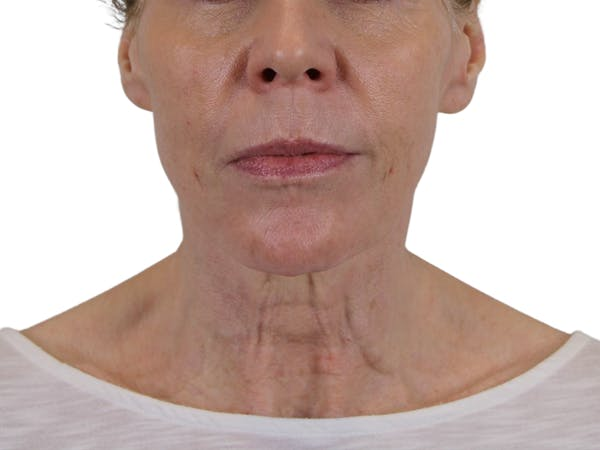 Facelift Gallery - Patient 50517878 - Image 3