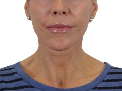 Facelift Gallery - Patient 50517878 - Image 4