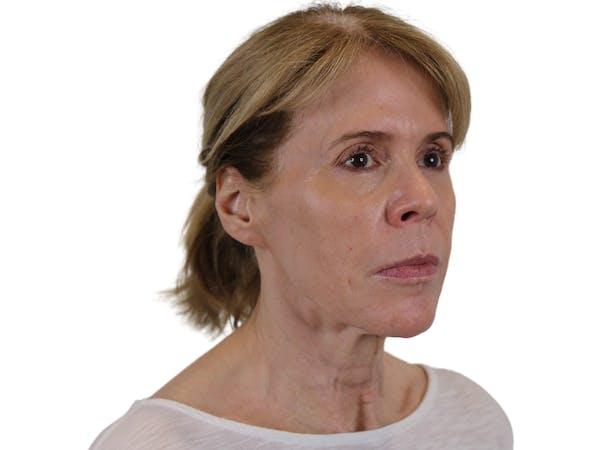 Facelift Gallery - Patient 50517878 - Image 5