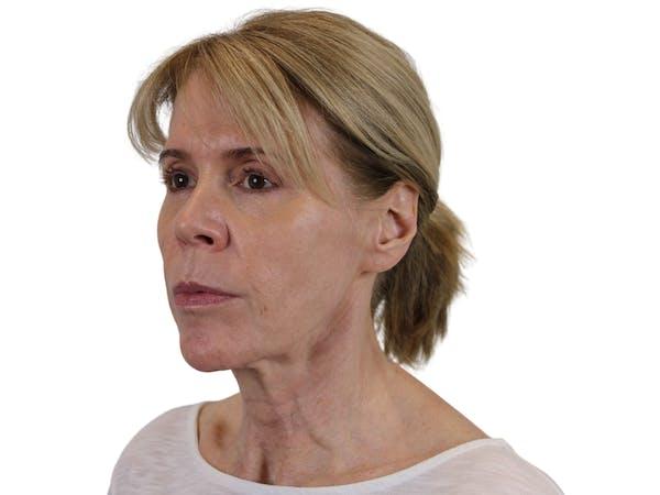 Facelift Gallery - Patient 50517878 - Image 7